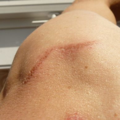 All You Need to Know about Compensation for Scarring: What You can Claim