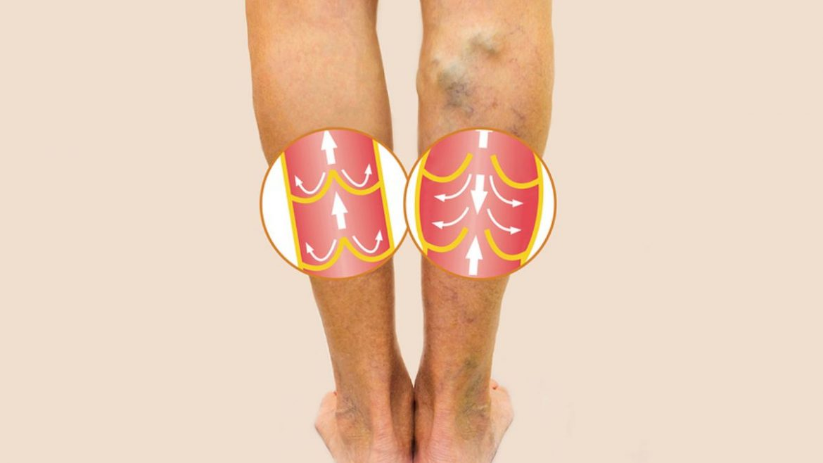 The worst symptoms of varicose veins