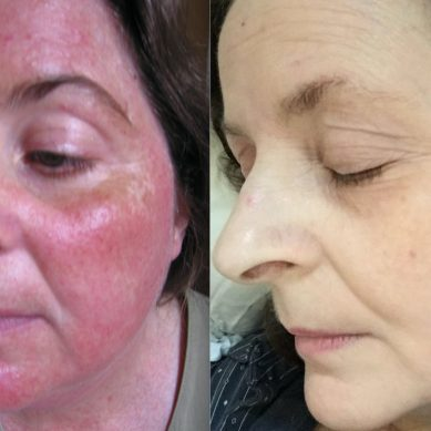 Common misdiagnosis – 5 conditions that mimic Rosacea