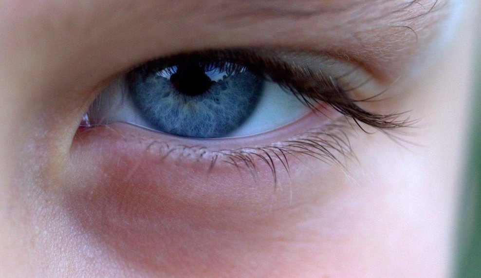 Dark circles under the eyes of children: should we be concerned?