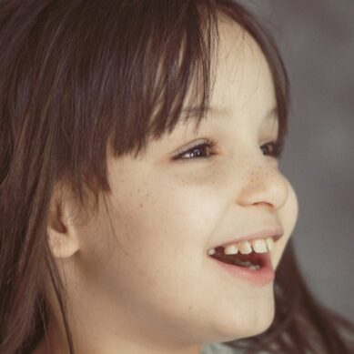 When to worry if baby teeth don't fall out, and can it be due to disease?